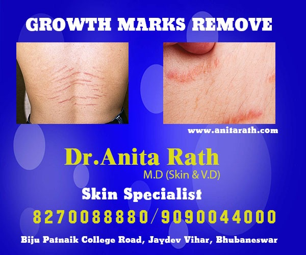 Growth Marks Removal Treatment In Bhubaneswar