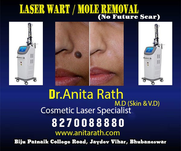 Laser wart/ Mole Removal Clinic In Bhubaneswar