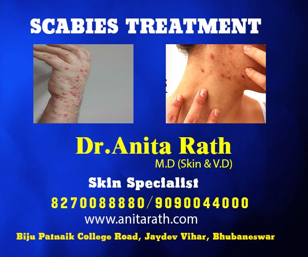Scabies Treatment In Bhubaneswar